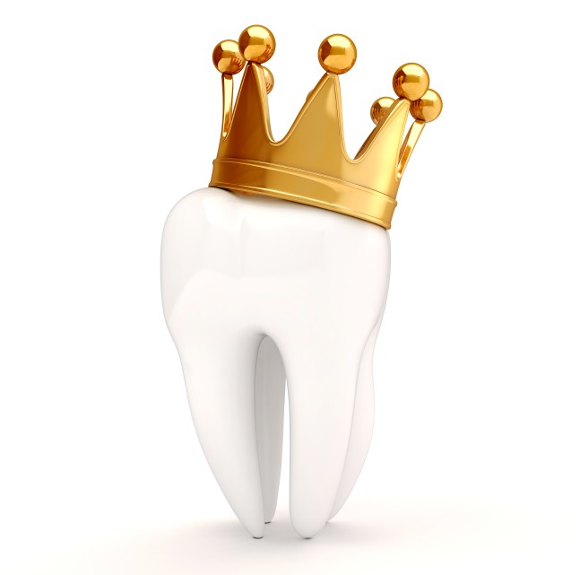 Dental Crowns: What You Should Know about this Royal Treatment