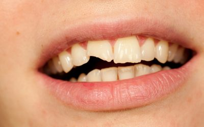 Dental Bonding: A Fast and Relatively Affordable Way to a Beautiful Smile