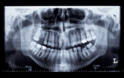 How Long Does a Tooth Filling Last?