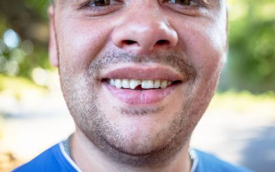 What to do About Broken or Chipped Teeth