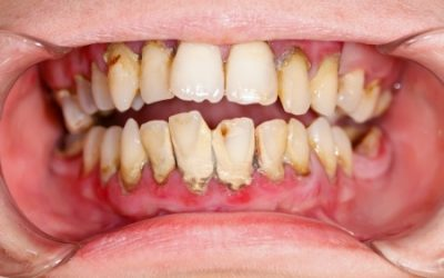 What Causes Cavities (and How to Avoid Getting Them)?