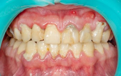 Gum Disease and the Cancer Link