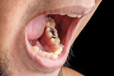 Amalgam Fillings vs  Resin Composite Fillings - Danville