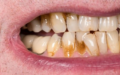 Receding Gums: When Should You Worry?