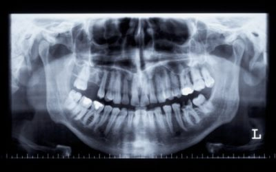 Do You Need Dental X-Rays Every Year?