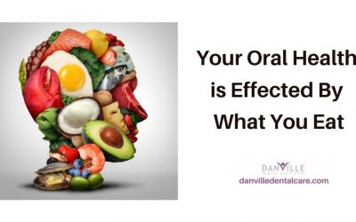 Keto Diet? Does it Affect Dental Health?