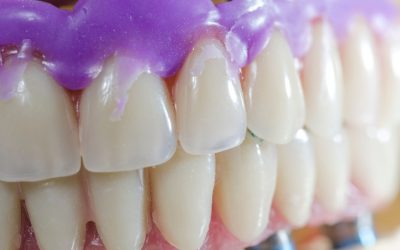 Dental Veneers Do More Than Fix Smiles