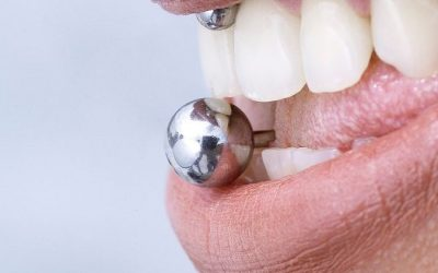 How Oral Piercing Affects Your Dental Health