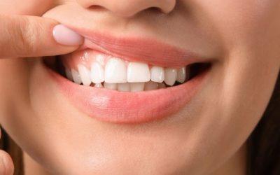How to Triumph Over Gum Disease