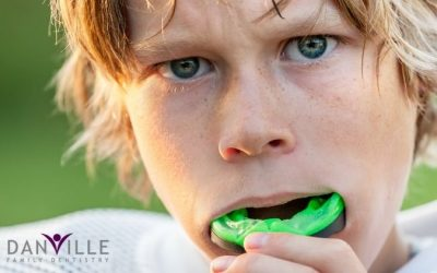 Mouth Guards: Safety is the Best Fit